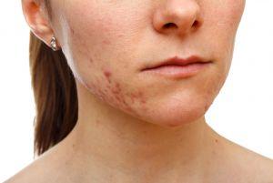Cicatrices d'acné : l'association miracle du microneedling et du peeling PXR33