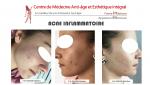 Le peeling à l'acide salicylique et glycolique pour traiter l'acné inflammatoire