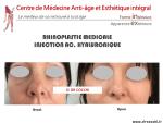 La « rhinoplastie médicale » pour corriger les défauts modérés du nez