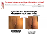 L'augmentation du volume des grandes lèvres par injections d'acide hyaluronique