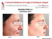Le peeling PTRX 33 + needling pour traiter les cicatrices d'acné