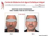 Hommes : L'acide hyaluronique pour un visage plus viril
