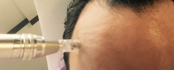 Que peut-on attendre du microneedling ?