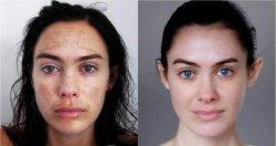 Enlever la pigmentation sur la personne pendant la grossesse