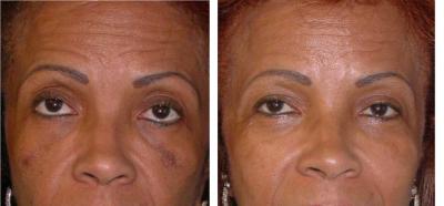 Comme soigner la peau de la personne avec la pigmentation