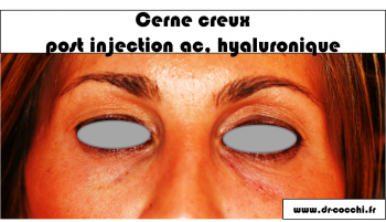 Photo après injection du cerne creux